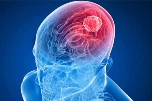 Лечение менингиомы головного мозга