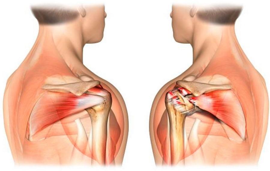 Квалифицированная помощь в лечение проблем суставов