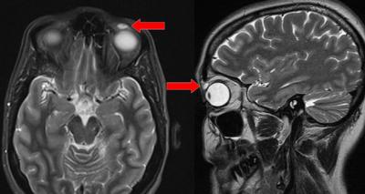 Забытая контактная линза почти 30 лет находилась в глазу женщины