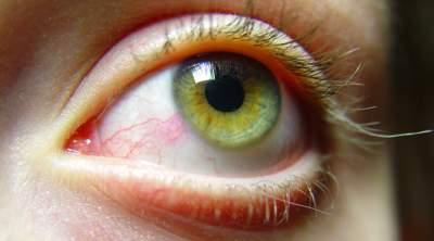 Окулисты рассказали, о чем могут говорить красные глаза