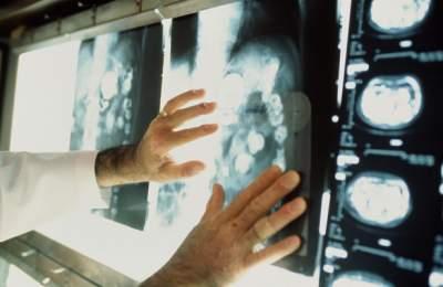 Названы симптомы рака, которые появляются за 5 лет до болезни