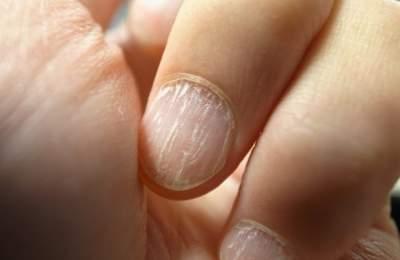 Медики рассказали, как рак можно диагностировать по ногтям