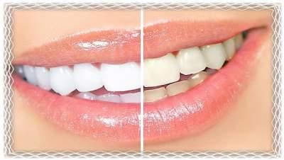 Названы продукты, способные вернуть зубам белизну