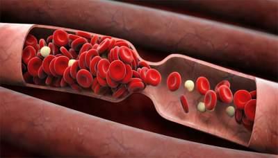 Названы причины и симптомы появления тромбов в сосудах