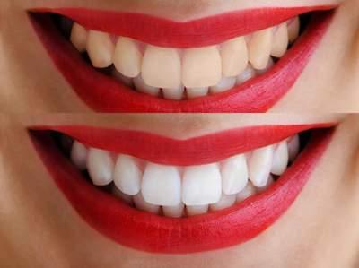 Названы простые рецепты для домашнего отбеливания зубов