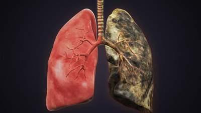 Названы профессии, представители которых рискуют заболеть раком легких
