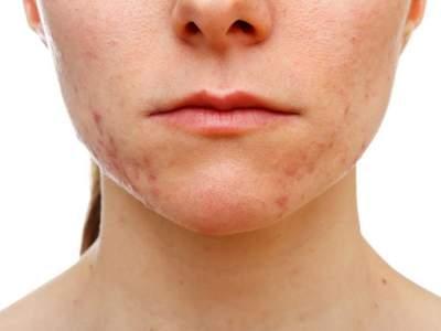Медики рассказали, как вылечить акне на проблемной коже