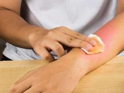 Медики рассказали, как лечить ожоги домашними средствами