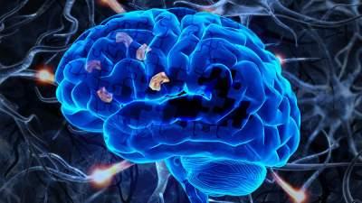 В США случайно открыли лекарство от Альцгеймера