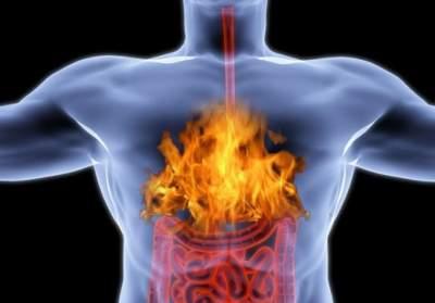Врачи рассказали, какая пища помогает при изжоге