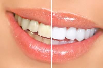 Назван эффективный домашний способ отбеливания зубов