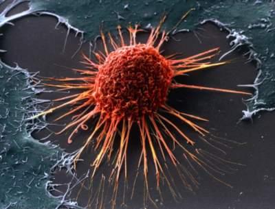 Онколог назвал лучший способ профилактики рака