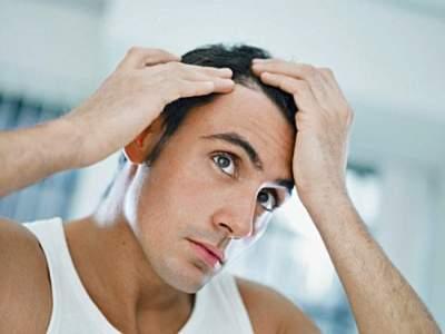 Названа неизвестная ранее причина выпадения волос у мужчин