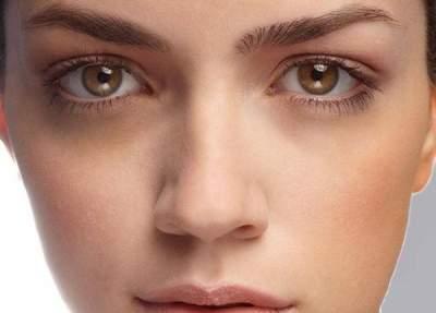 О каких болезнях сигнализируют темные круги под глазами