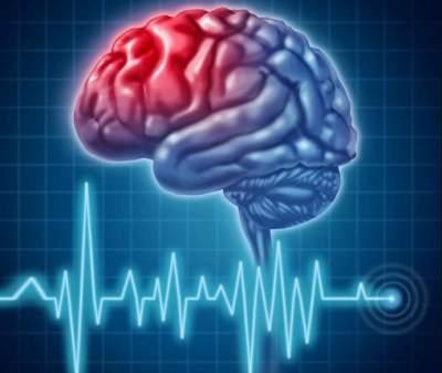 Медики назвали симптомы приближающегося инсульта
