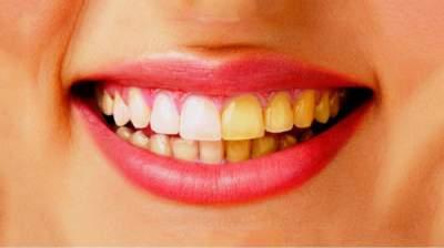 В чем причина желтизны зубов и как с ней справиться