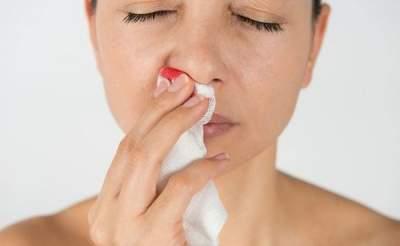 Медики объяснили, почему может пойти носом кровь