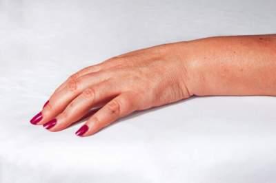 Врачи рассказали, какие заболевания можно диагностировать по рукам