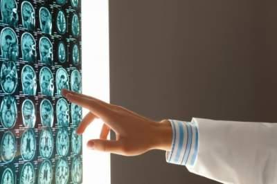 Врачи рассказали о способах ранней диагностики опухолей мозга
