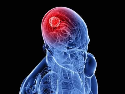 Медики назвали первые симптомы рака мозга