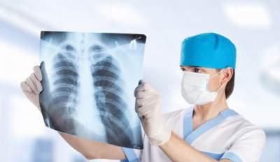 Медики опровергли популярные мифы о пневмонии