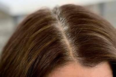 Названы причины раннего появления седых волос