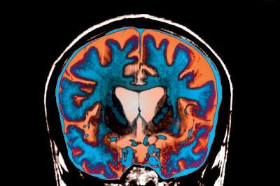 Эта повседневная активность может замедлить старение мозга