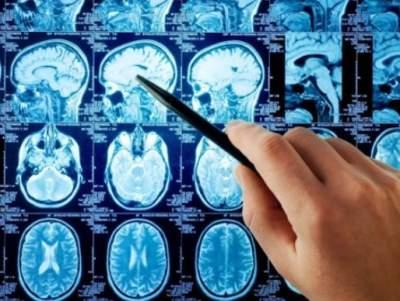 Медики рассказали, как недосыпание влияет на мозг