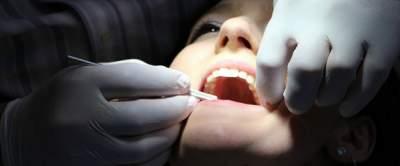 Стоматологи открыли новый способ лечения кариеса