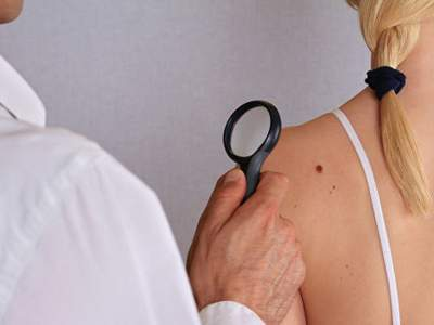 Медики рассказали, как самостоятельно обнаружить меланому