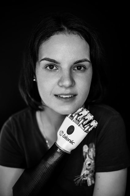 Маргарита Грачева: как сейчас живет девушка, которой муж отрубил кисти обеих рук