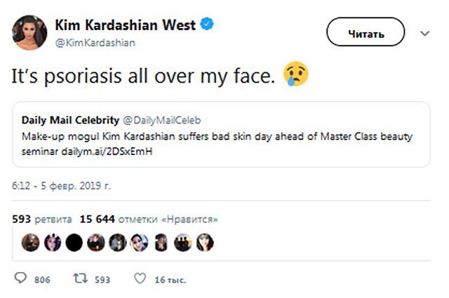 Ким Кардашьян ответила на критику своего макияжа и состояния кожи: «Псориаз по всему лицу»