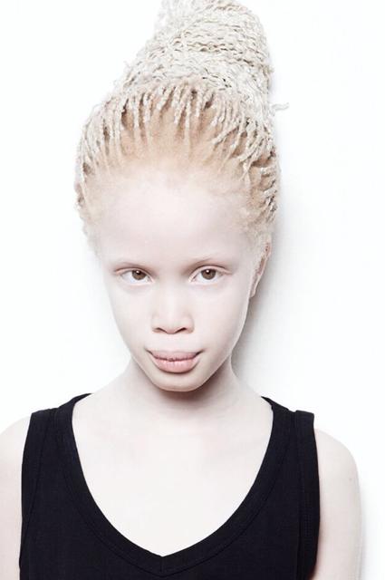 Сестры Бавар: как близнецы-альбиносы из Бразилии покоряют мир моды