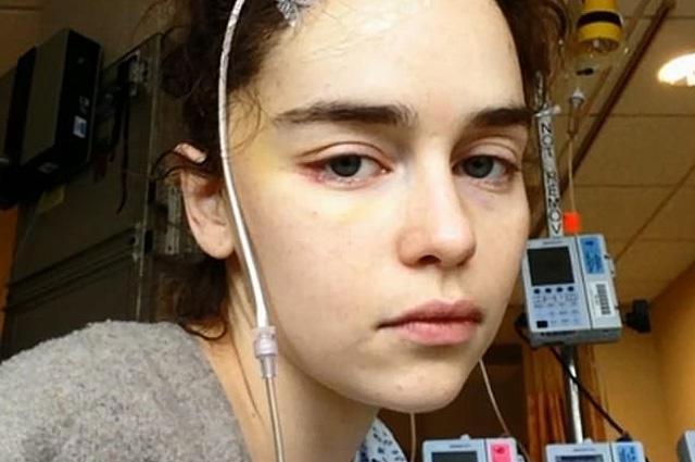 В сети появились фотографии Эмилии Кларк после инсульта