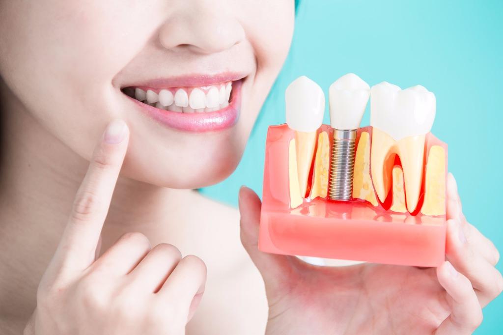 Где поставить хорошие зубные импланты?