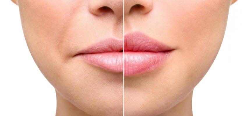 Две простые косметологические процедуры для тех, кто хочет почувствовать себя увереннее