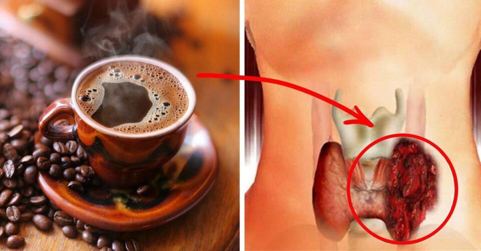 Назван орган, который больше всего страдает из-за злоупотребления кофеином