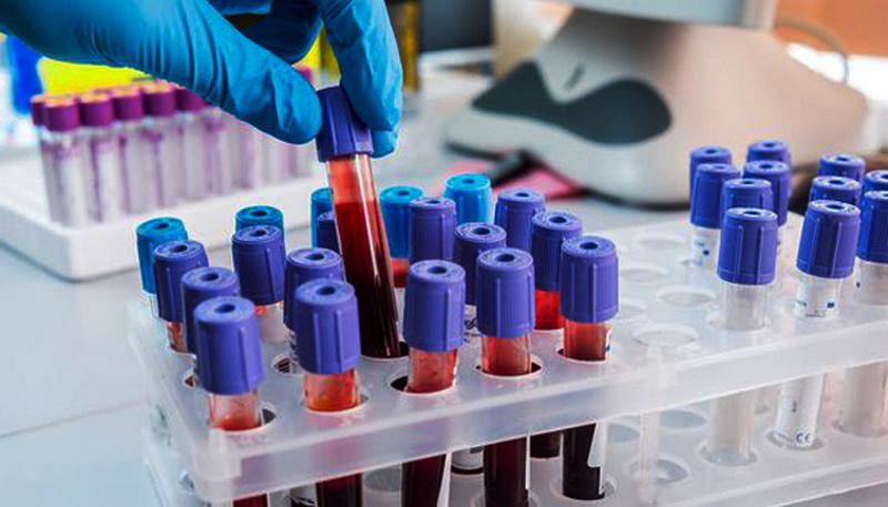 Названы симптомы коронавируса, при которых необходима госпитализация