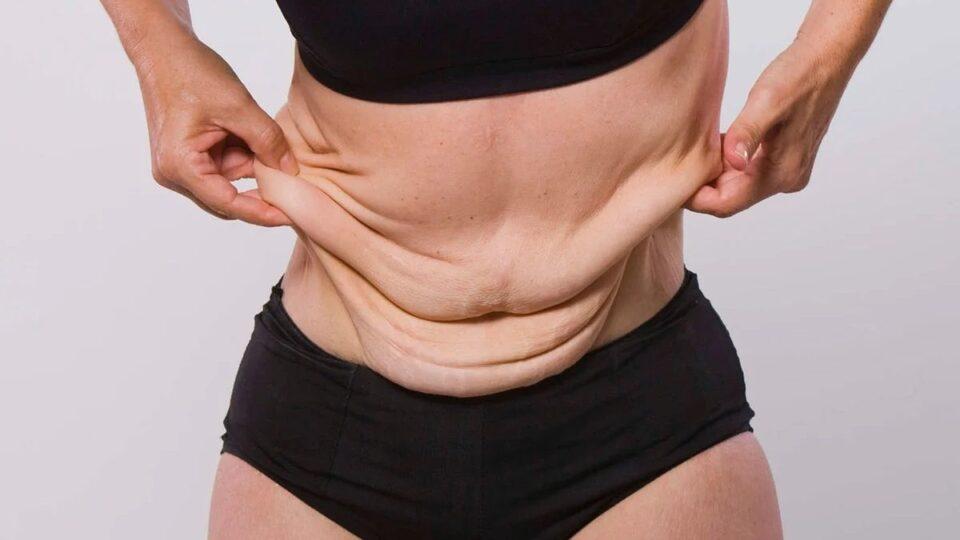 Тренер рассказала, в каких случаях кожа обвисает после похудения