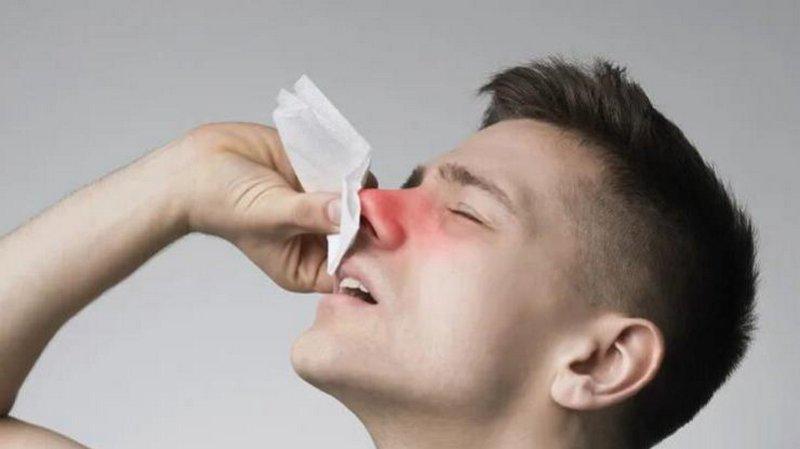 Кровь из носа: когда пора бить тревогу