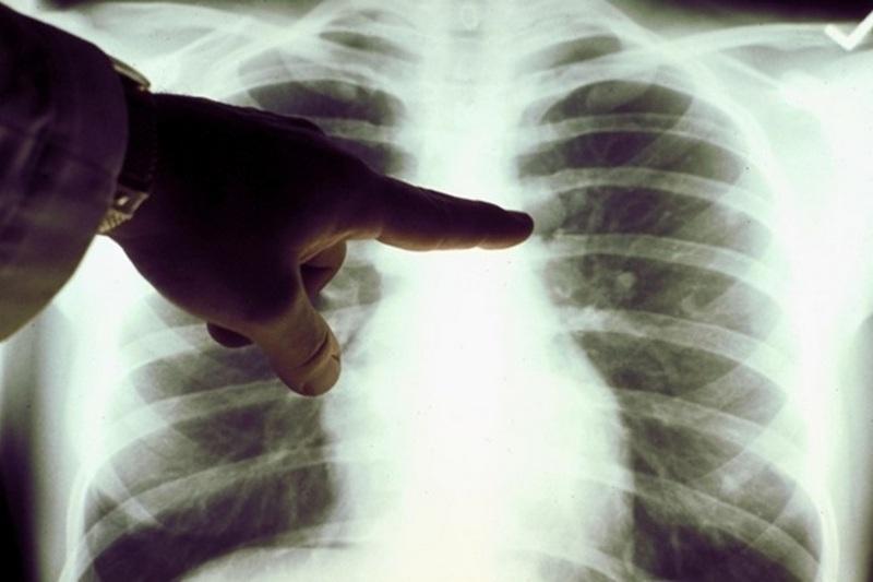 Названы главные признаки скрытой пневмонии, которые важно вовремя распознать