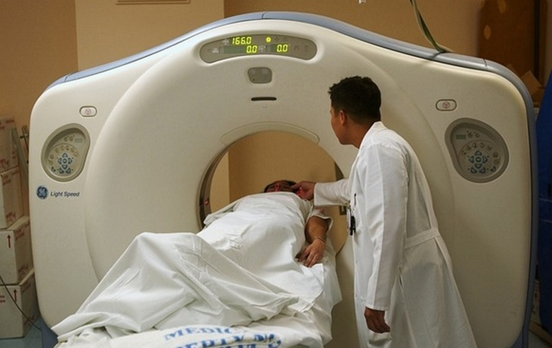 Названы неожиданные симптомы, которые могут быть предвестниками рака