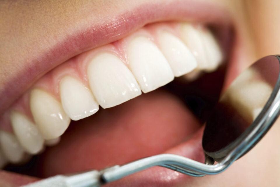 Художественная реставрация: эффективный способ спасти поврежденные зубы