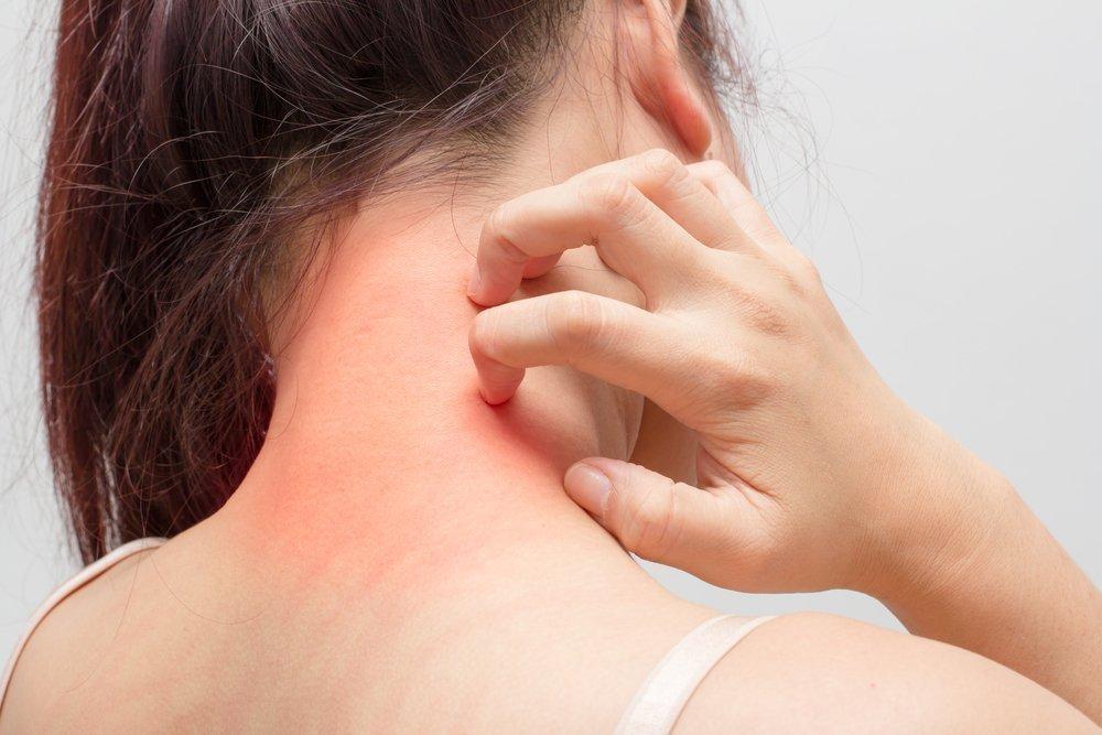 Как справиться с нейродерматитом