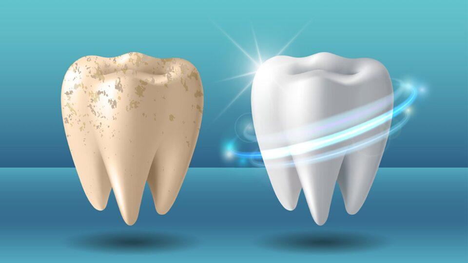 Стоматологи ответили, как отбеливание влияет на здоровье зубов