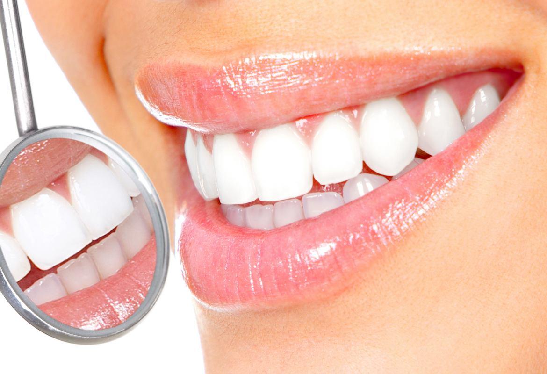 Названы продукты, после которых может понадобиться отбеливание зубов